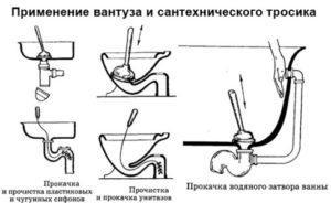 засорение труб